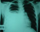 类肺炎性胸腔积液(其他名称:类肺炎性胸膜腔积液)