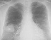 免疫缺陷者肺炎