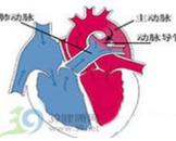妊娠合并原发性高血压