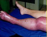 下肢静脉血栓形成