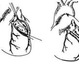 先天性冠状动脉瘘
