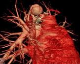 先天性肺动静脉瘘
