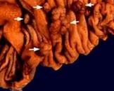 小儿共济失调毛细血管扩张Ⅰ型综合征