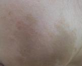 小儿共济失调毛细血管扩张综合征