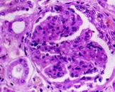 小儿肺出血-肾炎综合征