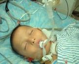 小儿急性呼吸窘迫综合征