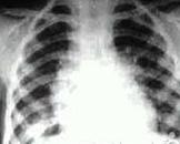 小儿急性血行播散型肺结核
