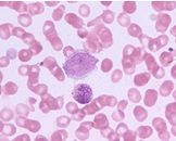 小儿热带嗜酸性粒细胞增多症