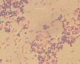 小儿金黄色葡萄球菌肺炎
