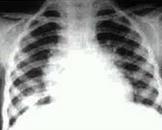小儿原发型肺结核