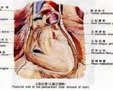 心包转移瘤