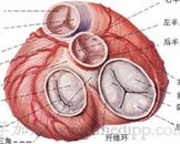 心肌梗塞并发心室间隔穿破