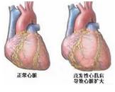 心尖肥厚型心肌病