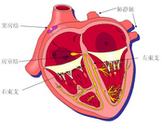 心室内传导阻滞