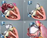 心脏黏液瘤