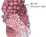 新生儿肺气漏