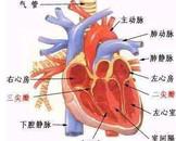 心脏脂肪瘤