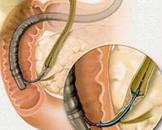 十二指肠憩室梗阻性黄疸综合征