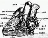 左心发育不良(其他名称:左心发育不良综合征)