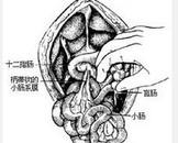 先天性肠旋转异常