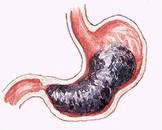 先天性胃出口梗阻