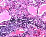 小儿X-连锁淋巴组织增生性疾病