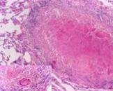 小儿肠系膜淋巴结结核