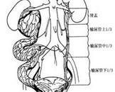 先天性巨输尿管