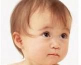 小儿单纯性血尿