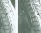脊髓内脓肿