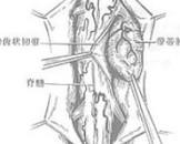 脊髓神经鞘瘤