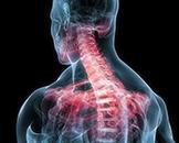 脊髓栓系综合征