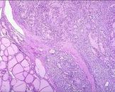老年人甲状腺癌(其他名称:老年甲状腺癌,老年人恶性甲状腺肿,老年恶性甲状腺肿)