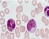 白细胞减少症和粒细胞缺乏症