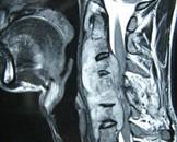 单纯性脊柱结核