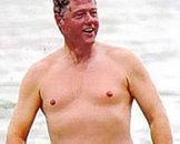 男子乳房发育症