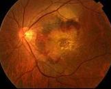 糖尿病性视网膜病变