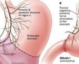 小儿良性先天性肌弛缓综合征