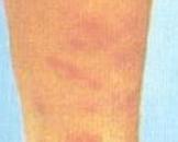 小儿神经皮肤综合征