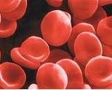 巨幼细胞性贫血