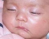 新生儿反应低下