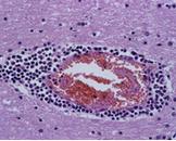 新生儿化脓性脑膜炎