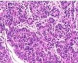 腺泡细胞癌