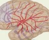 血管炎性周围神经病