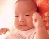 婴儿肉毒中毒综合征