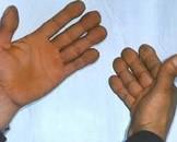 小儿肢端肥大症和垂体性巨人症