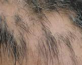 休止期脱发