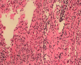 小儿海蓝组织细胞增生症