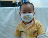 小儿急性淋巴细胞性白血病