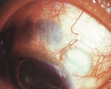 系统性红斑狼疮性巩膜炎(其他名称:全身性红斑狼疮性巩膜炎)
